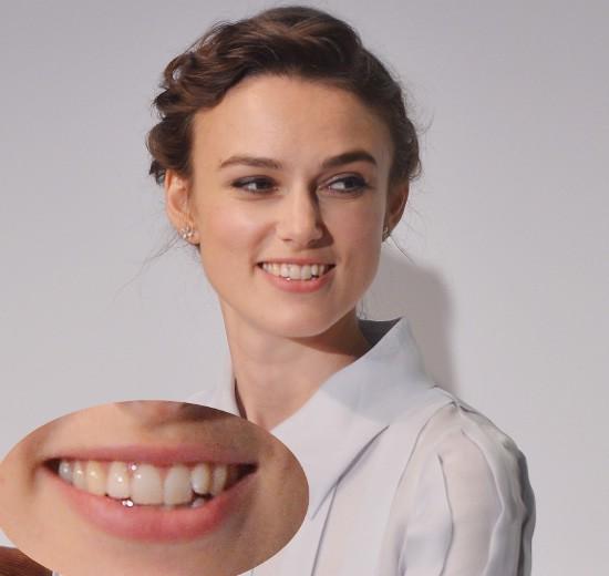 фото клыки зубов